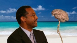 Ben Carson and his brain to split.